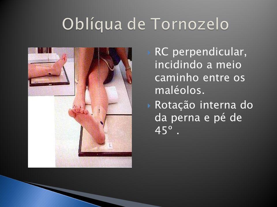 RC perpendicular, incidindo a meio caminho entre os maléolos. Rotação interna do da perna e pé de 45º.