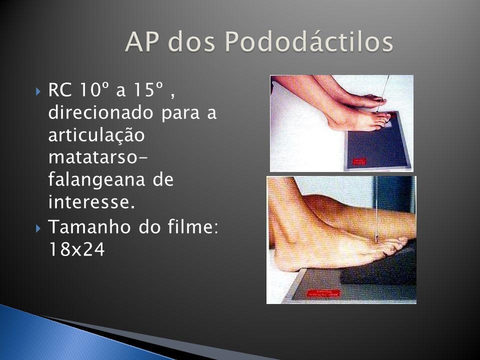 RC perpendicular, incidindo no 1/3 médio da perna.