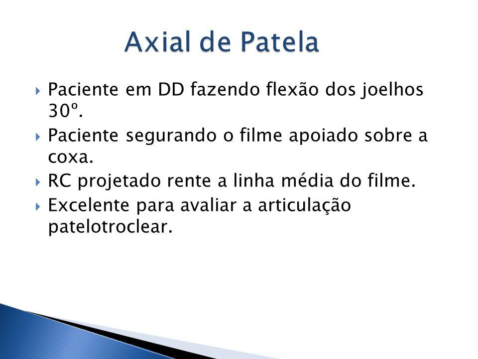 Paciente em DD fazendo flexão dos joelhos 30º. Paciente segurando o filme apoiado sobre a coxa. RC projetado rente a linha média do filme. Excelente p