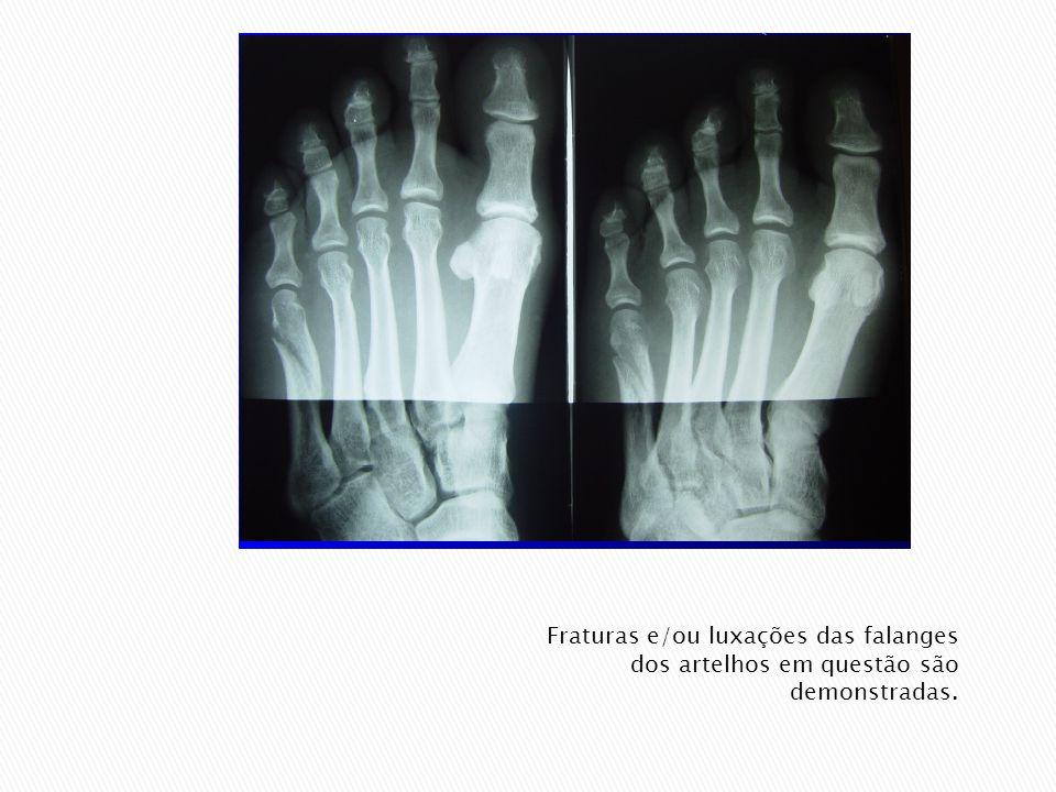 Rodar a perna e o pé afetados medialmente (látero-medial) para o 1º, 2º e 3º dedo e lateralmente (médio-lateral) para o 4º e 5º dedo.