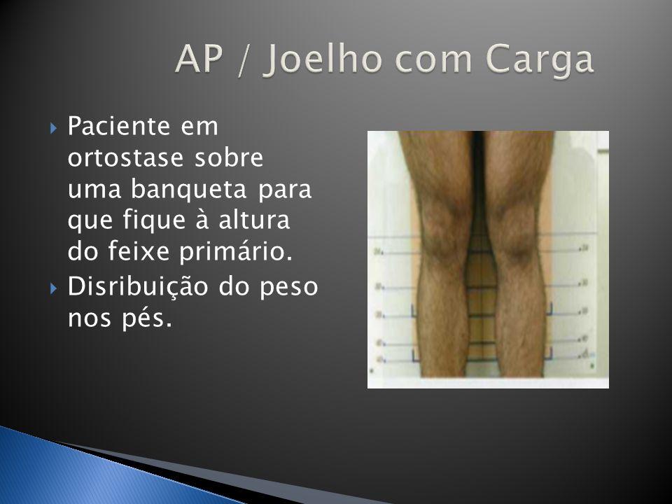 Paciente em ortostase sobre uma banqueta para que fique à altura do feixe primário. Disribuição do peso nos pés.