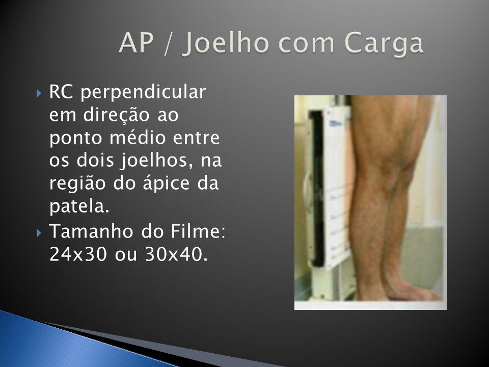 RC perpendicular em direção ao ponto médio entre os dois joelhos, na região do ápice da patela. Tamanho do Filme: 24x30 ou 30x40.