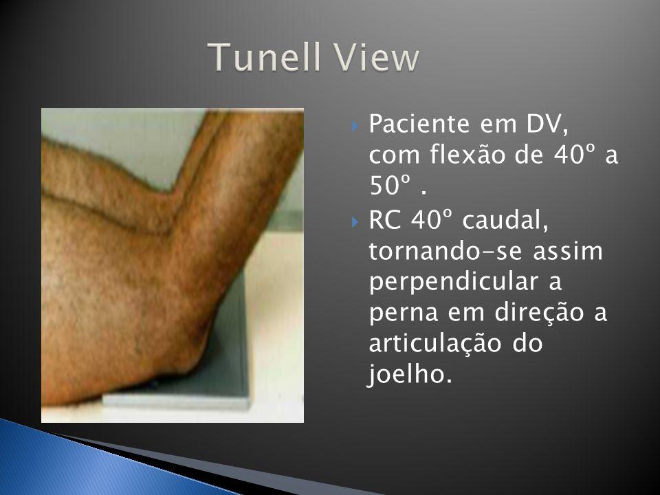 Paciente em DV, com flexão de 40º a 50º. RC 40º caudal, tornando-se assim perpendicular a perna em direção a articulação do joelho.