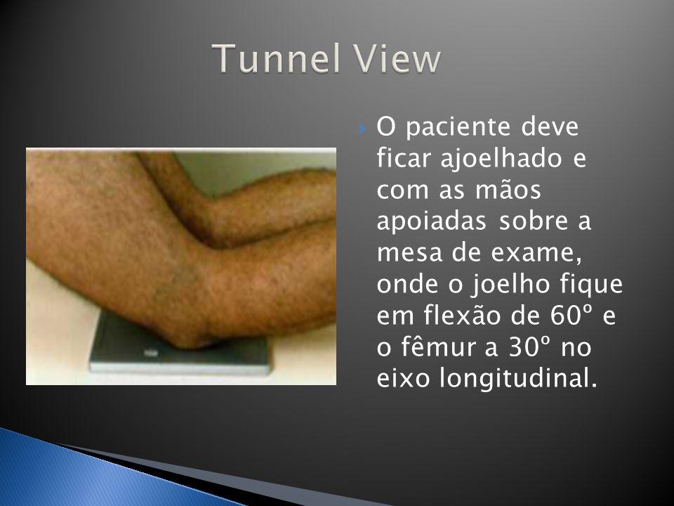 O paciente deve ficar ajoelhado e com as mãos apoiadas sobre a mesa de exame, onde o joelho fique em flexão de 60º e o fêmur a 30º no eixo longitudina