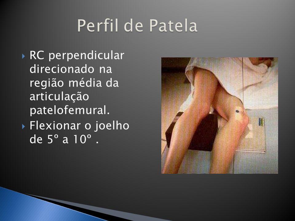 RC perpendicular direcionado na região média da articulação patelofemural. Flexionar o joelho de 5º a 10º.