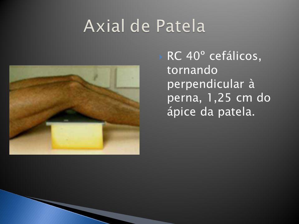 RC 40º cefálicos, tornando perpendicular à perna, 1,25 cm do ápice da patela.