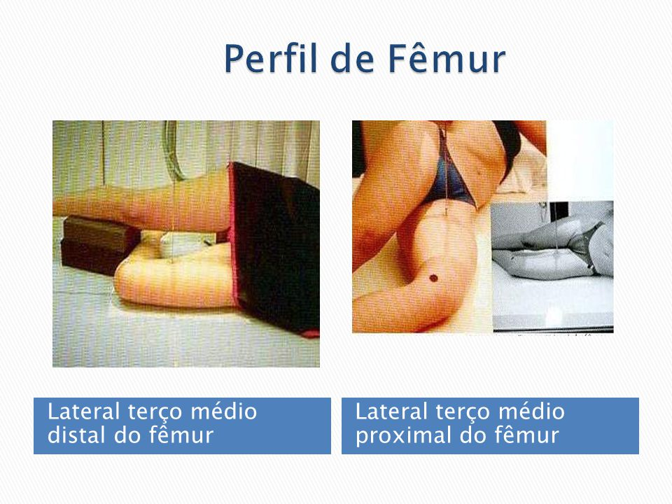 Lateral terço médio distal do fêmur Lateral terço médio proximal do fêmur