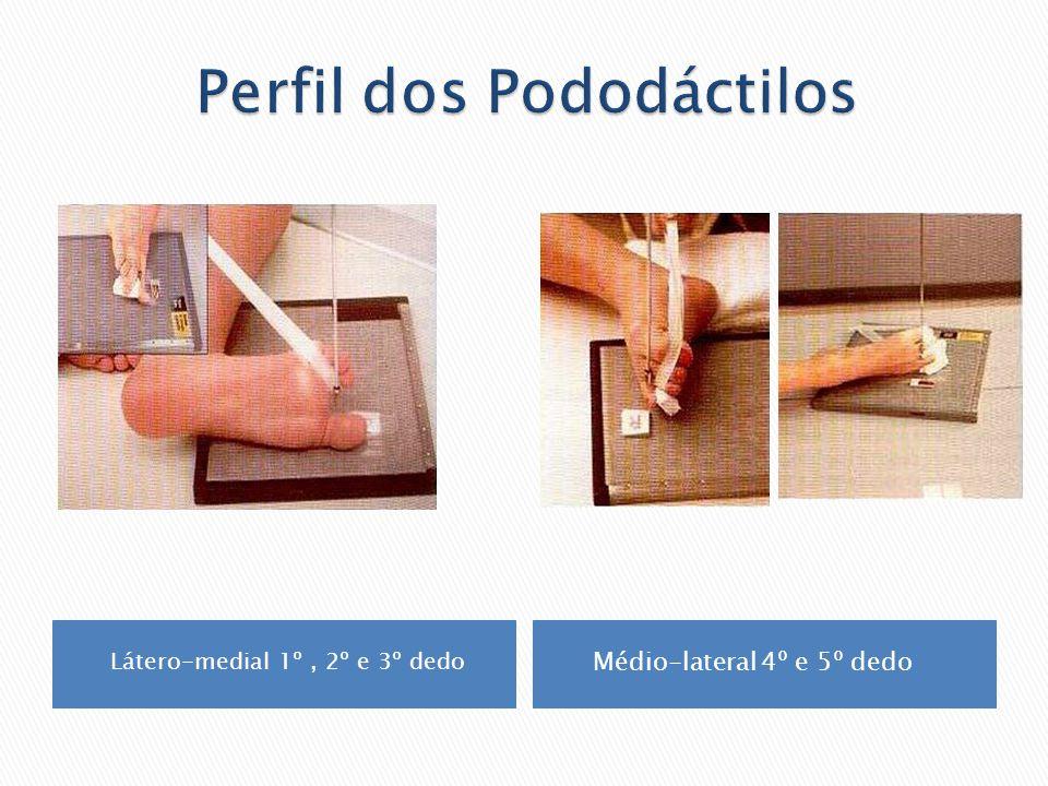 Paciente em ortostase, pisando sobre uma caixa própria para o estudo do pé com carga.