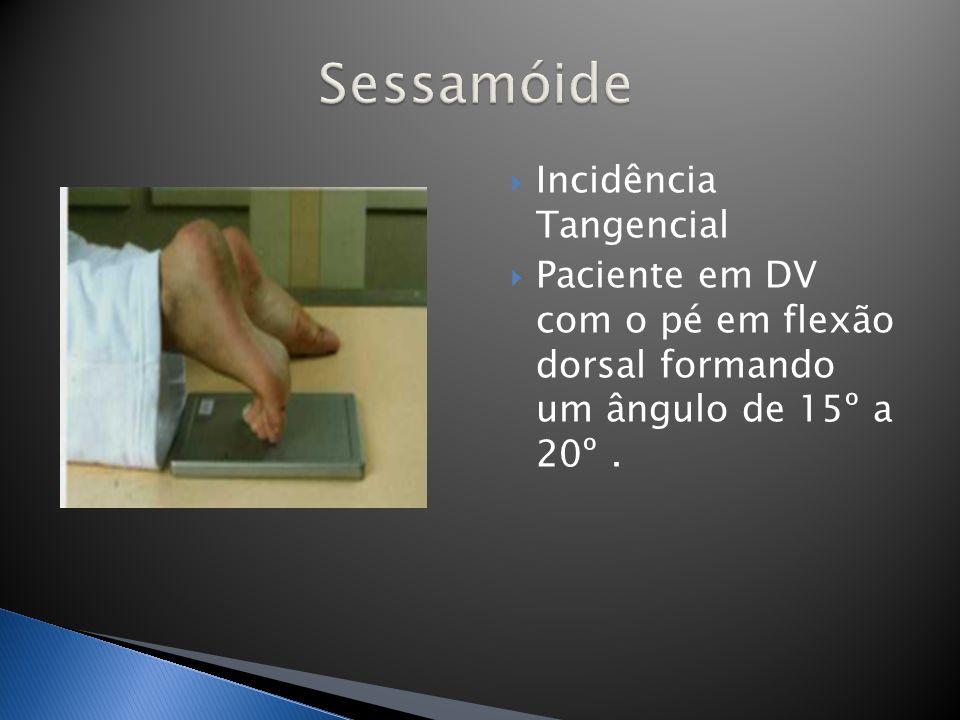 Paciente em ortostase lateral junto ao Bucky sobre um anteparo fazendo apoio monopodálico com flexão dos joelhos 30º.