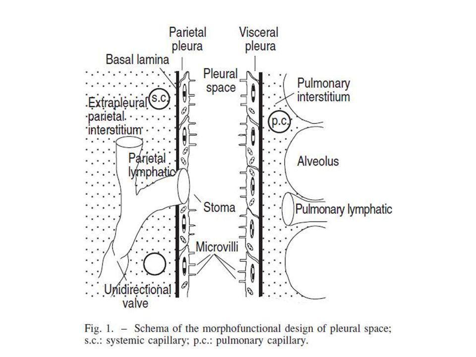 1.Aumento da PHc (ICC) 2.Redução da Pop (hipoalbuminemia grave) 3.Aumento da permeabilidade capilar (pneumonia) 4.Obstáculos à drenagem linfática do espaço pleural (derrame maligno) 5.Movimento de líquido a partir da cavidade peritonial (ascite).