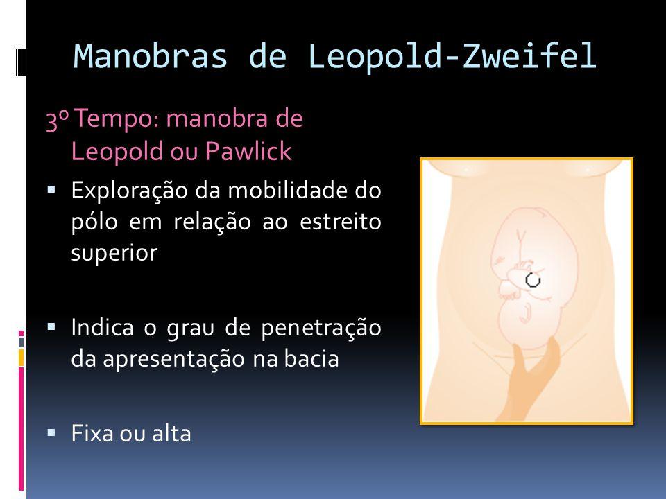 Manobras de Leopold-Zweifel 3º Tempo: manobra de Leopold ou Pawlick Exploração da mobilidade do pólo em relação ao estreito superior Indica o grau de