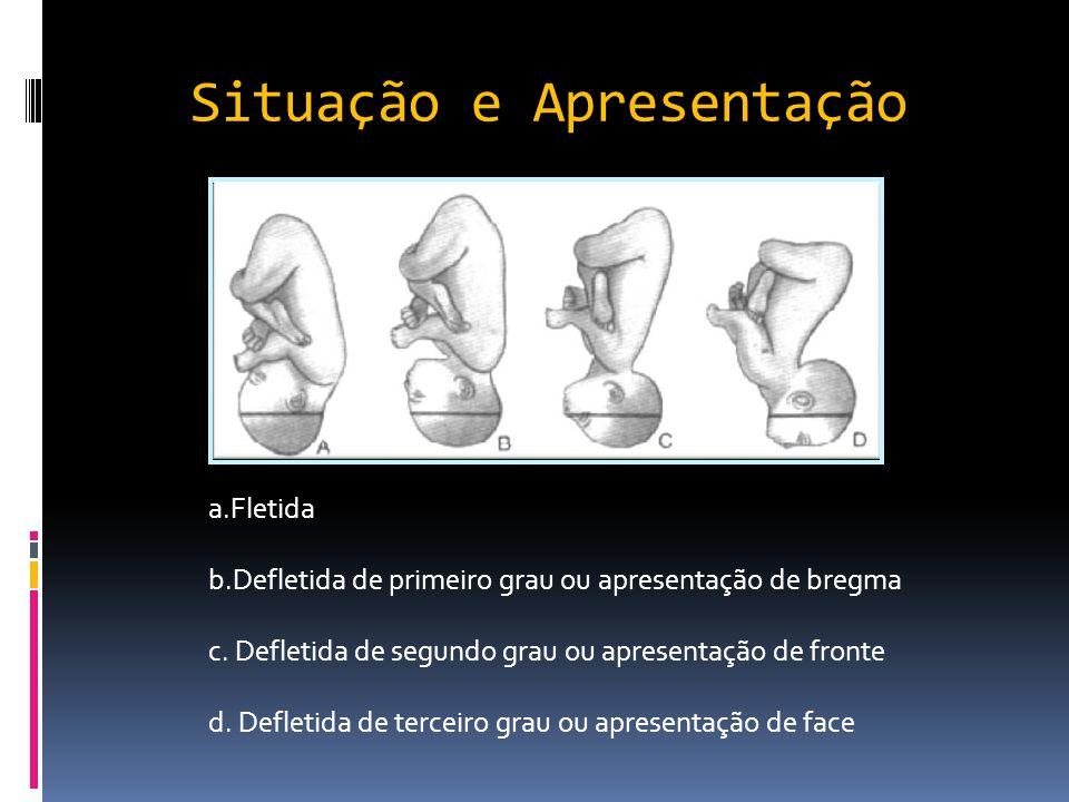 Situação e Apresentação a.Fletida b.Defletida de primeiro grau ou apresentação de bregma c. Defletida de segundo grau ou apresentação de fronte d. Def