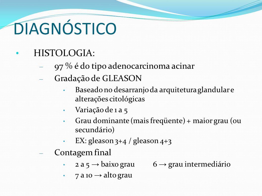 DIAGNÓSTICO HISTOLOGIA: – 97 % é do tipo adenocarcinoma acinar – Gradação de GLEASON Baseado no desarranjo da arquitetura glandular e alterações citológicas Variação de 1 a 5 Grau dominante (mais freqüente) + maior grau (ou secundário) EX: gleason 3+4 / gleason 4+3 – Contagem final 2 a 5 baixo grau6 grau intermediário 7 a 10 alto grau