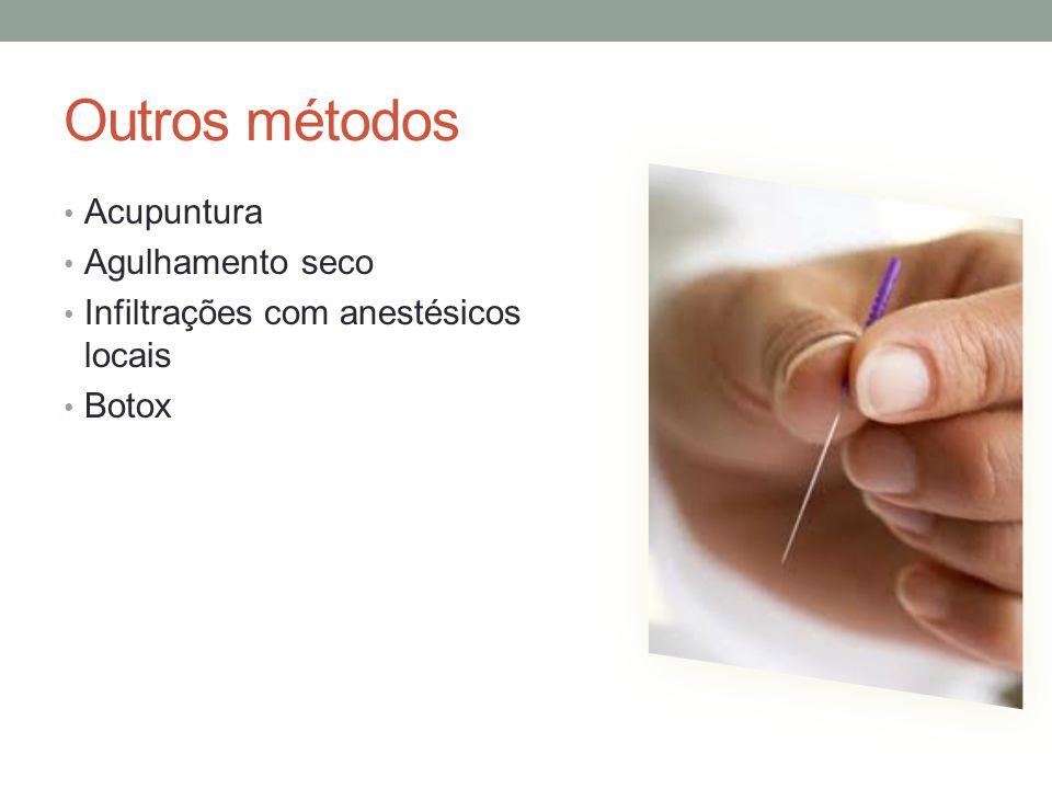 Outros métodos Acupuntura Agulhamento seco Infiltrações com anestésicos locais Botox