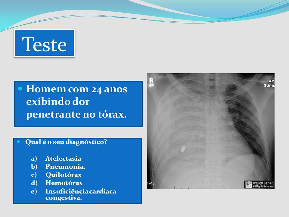 Teste Homem com 24 anos exibindo dor penetrante no tórax. Qual é o seu diagnóstico? a) Atelectasia b) Pneumonia. c) Quilotórax d) Hemotórax e) Insufic
