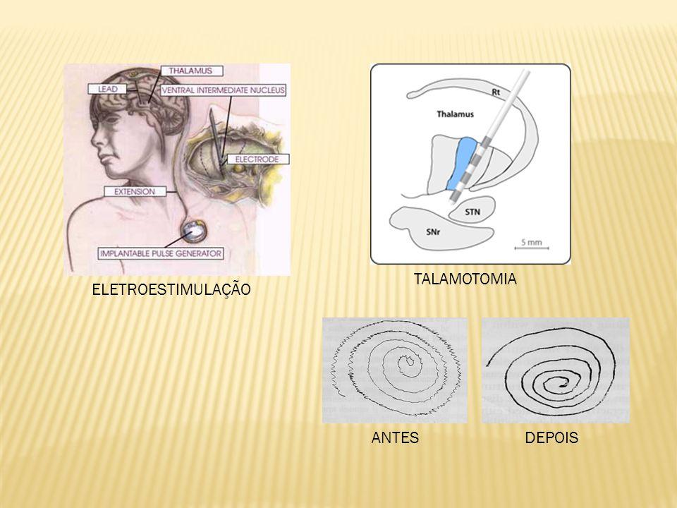 ANTES DEPOIS TALAMOTOMIA ELETROESTIMULAÇÃO
