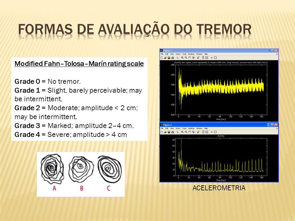 É a causa de tremor postural e de ação mais prevalente.