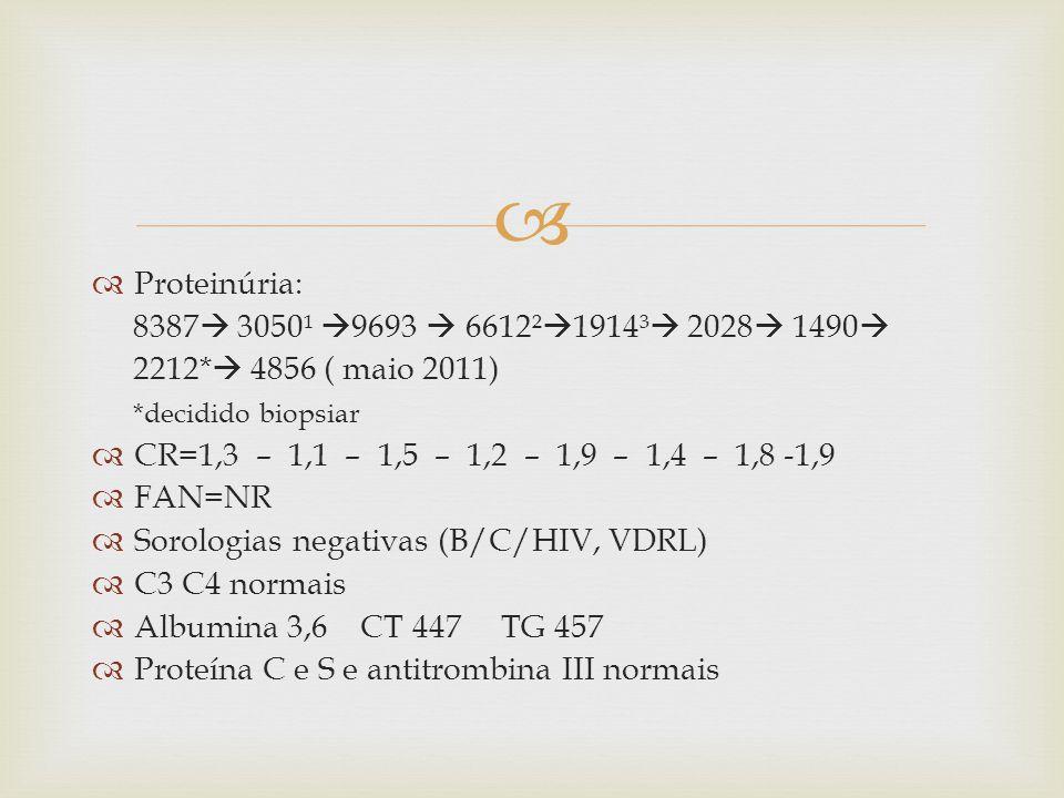 Proteinúria: 8387 3050¹ 9693 6612² 1914³ 2028 1490 2212* 4856 ( maio 2011) *decidido biopsiar CR=1,3 – 1,1 – 1,5 – 1,2 – 1,9 – 1,4 – 1,8 -1,9 FAN=NR Sorologias negativas (B/C/HIV, VDRL) C3 C4 normais Albumina 3,6 CT 447 TG 457 Proteína C e S e antitrombina III normais