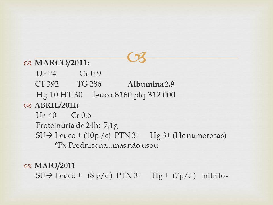 MARCO/2011: Ur 24 Cr 0.9 CT 392 TG 286 Albumina 2.9 Hg 10 HT 30 leuco 8160 plq 312.000 ABRIL/2011: Ur 40 Cr 0.6 Proteinúria de 24h: 7,1g SU Leuco + (10p /c) PTN 3+ Hg 3+ (Hc numerosas) *Px Prednisona...mas não usou MAIO/2011 SU Leuco + (8 p/c ) PTN 3+ Hg + (7p/c ) nitrito -