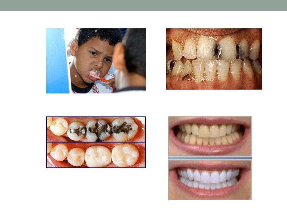 Periodontia Art 64....tem como objetivo o estudo, o diagnóstico, a prevenção e o tratamento das doenças gengivais e periodontais, visando à promoção e ao restabelecimento da saúde periodontal.