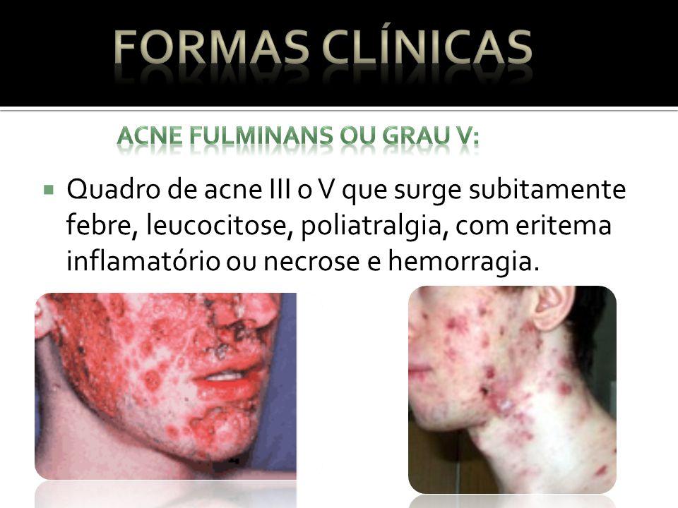Quadro de acne III o V que surge subitamente febre, leucocitose, poliatralgia, com eritema inflamatório ou necrose e hemorragia.