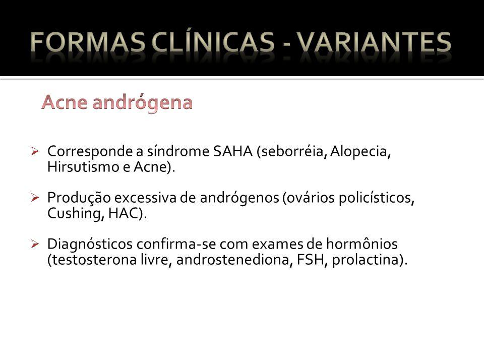 Corresponde a síndrome SAHA (seborréia, Alopecia, Hirsutismo e Acne).