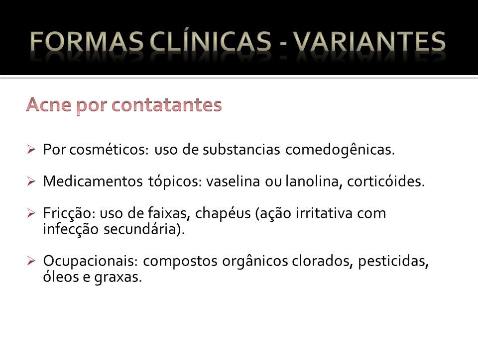 Por cosméticos: uso de substancias comedogênicas.