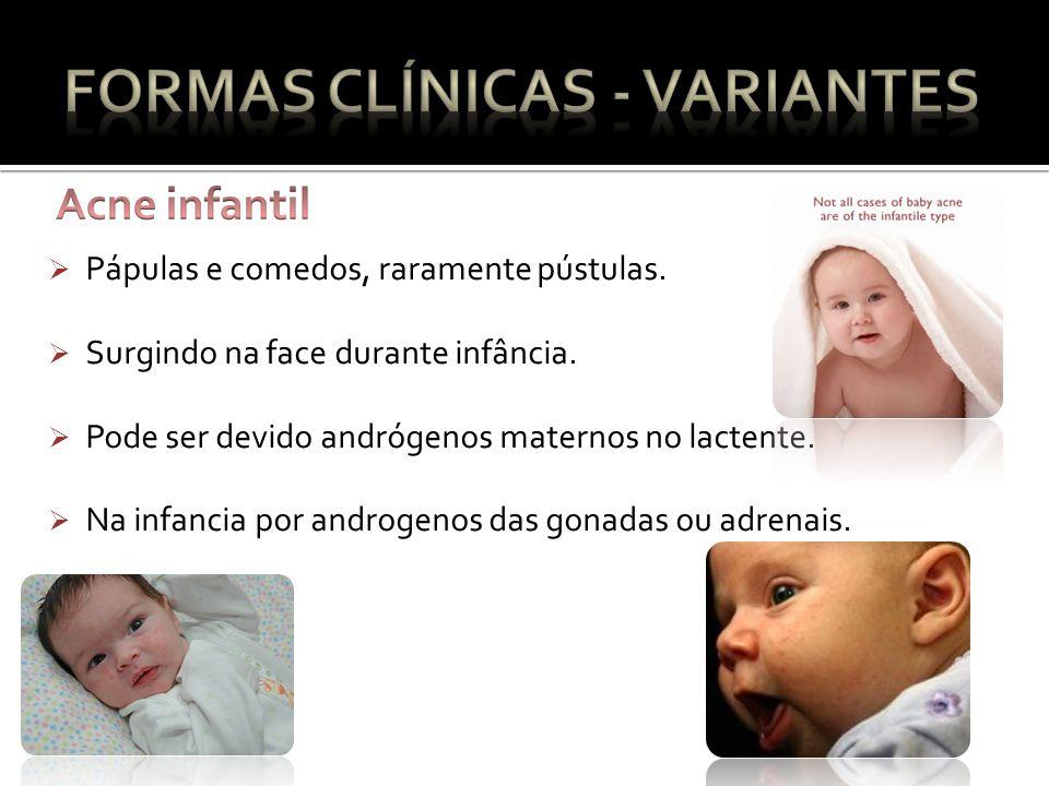 Pápulas e comedos, raramente pústulas.Surgindo na face durante infância.