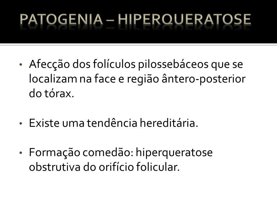 Afecção dos folículos pilossebáceos que se localizam na face e região ântero-posterior do tórax.