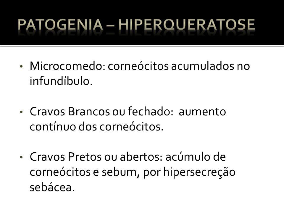Microcomedo: corneócitos acumulados no infundíbulo.