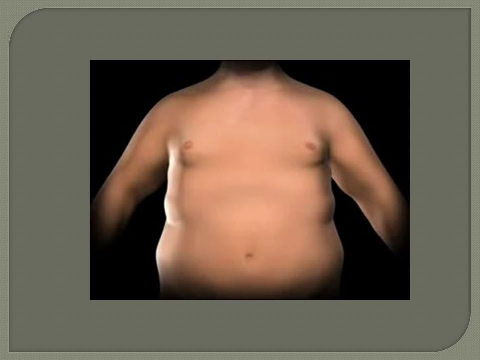 Perda de peso no longo prazo +/- 2 anos após a cirurgia JAMA 292:1724, 2004 Buchwald e cols.