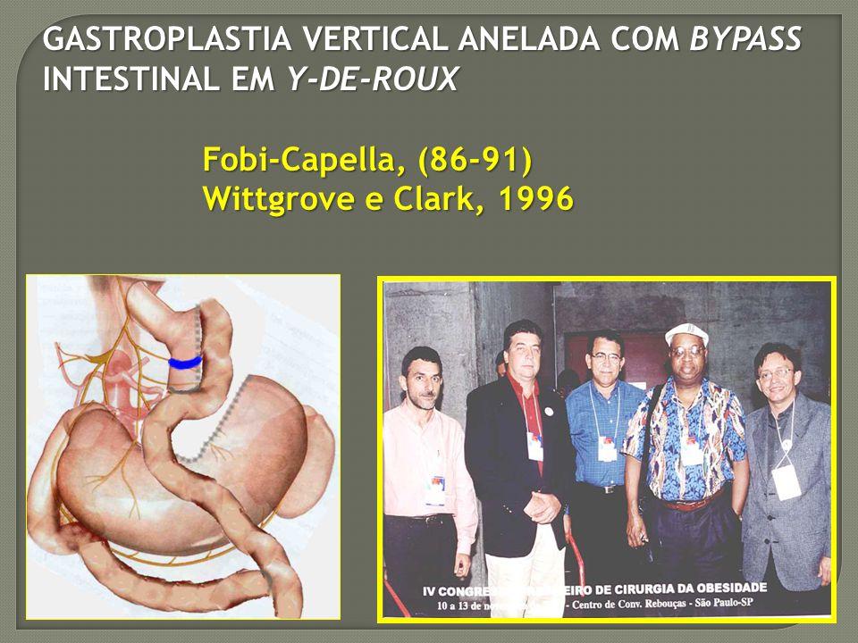 GASTROPLASTIA VERTICAL ANELADA COM BYPASS INTESTINAL EM Y-DE-ROUX Fobi-Capella, (86-91) Fobi-Capella, (86-91) Wittgrove e Clark, 1996 Wittgrove e Clar