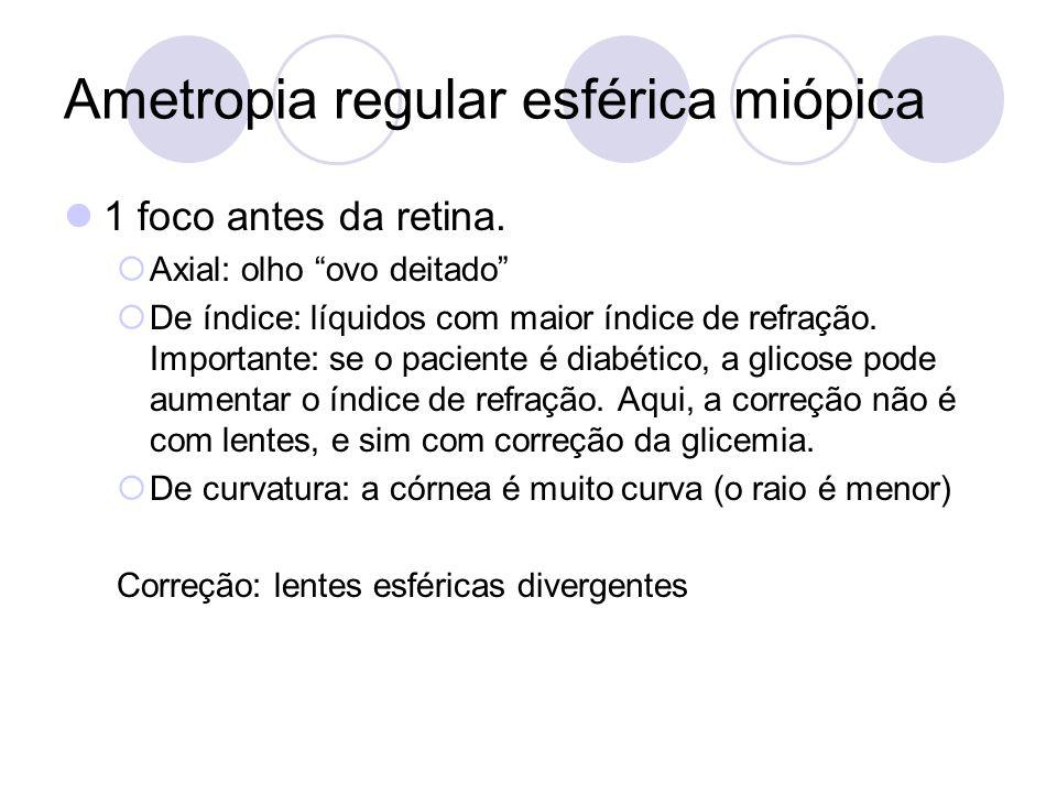 Ametropia regular esférica miópica 1 foco antes da retina. Axial: olho ovo deitado De índice: líquidos com maior índice de refração. Importante: se o