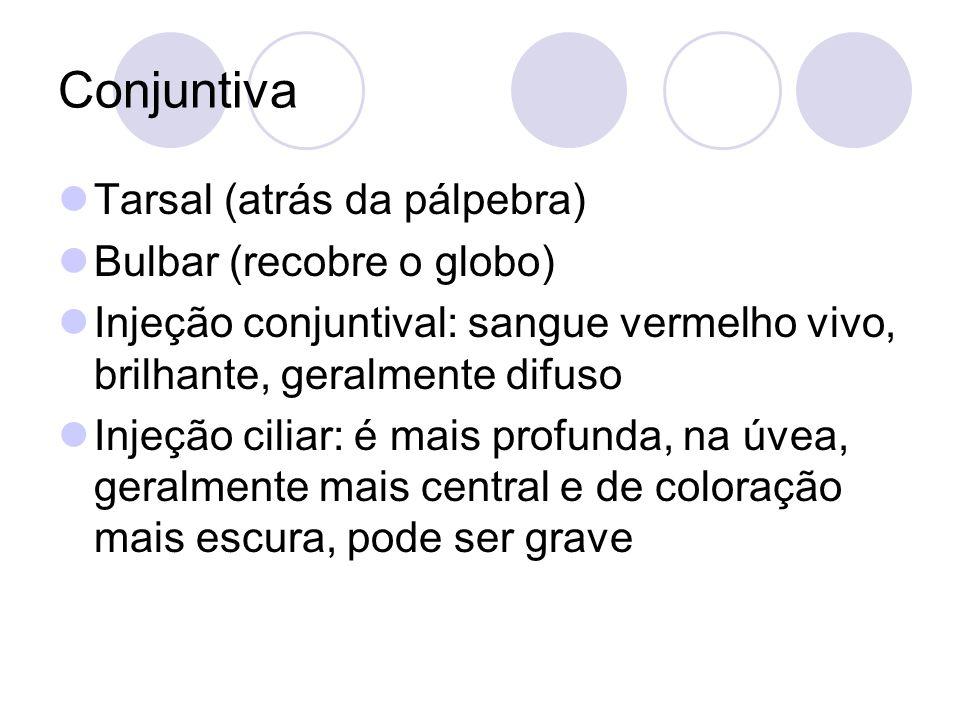 Conjuntiva Tarsal (atrás da pálpebra) Bulbar (recobre o globo) Injeção conjuntival: sangue vermelho vivo, brilhante, geralmente difuso Injeção ciliar: