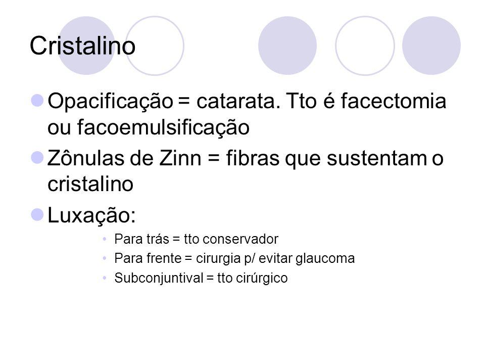 Cristalino Opacificação = catarata. Tto é facectomia ou facoemulsificação Zônulas de Zinn = fibras que sustentam o cristalino Luxação: Para trás = tto
