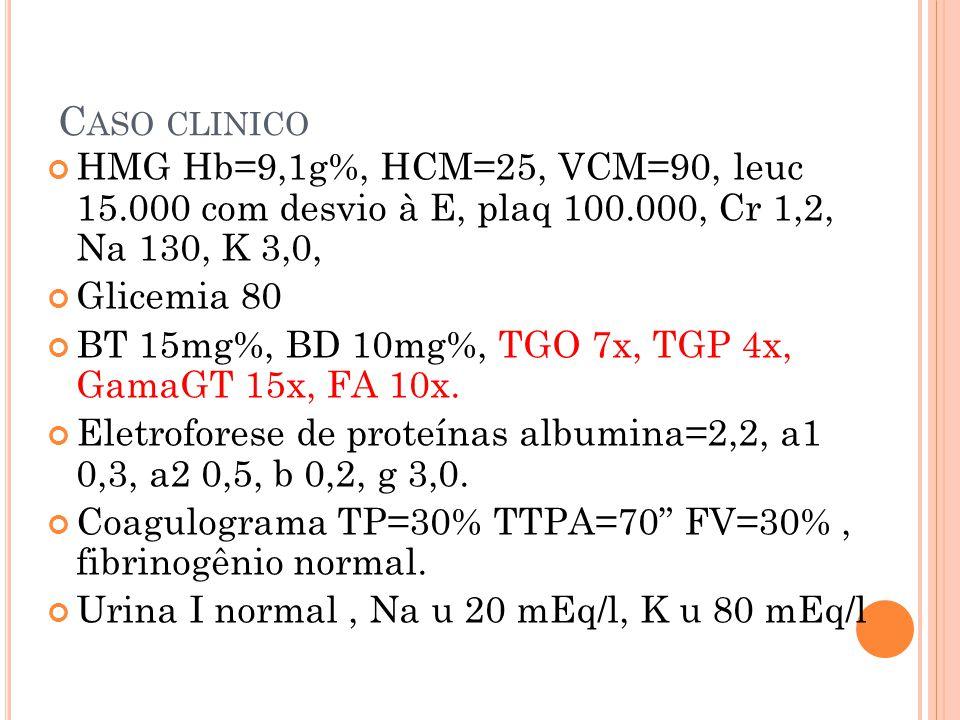 C ASO CLINICO HMG Hb=9,1g%, HCM=25, VCM=90, leuc 15.000 com desvio à E, plaq 100.000, Cr 1,2, Na 130, K 3,0, Glicemia 80 BT 15mg%, BD 10mg%, TGO 7x, T