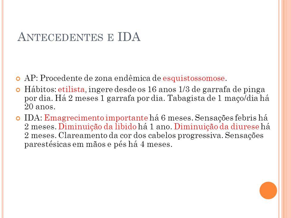 A NTECEDENTES E IDA AP: Procedente de zona endêmica de esquistossomose. Hábitos: etilista, ingere desde os 16 anos 1/3 de garrafa de pinga por dia. Há