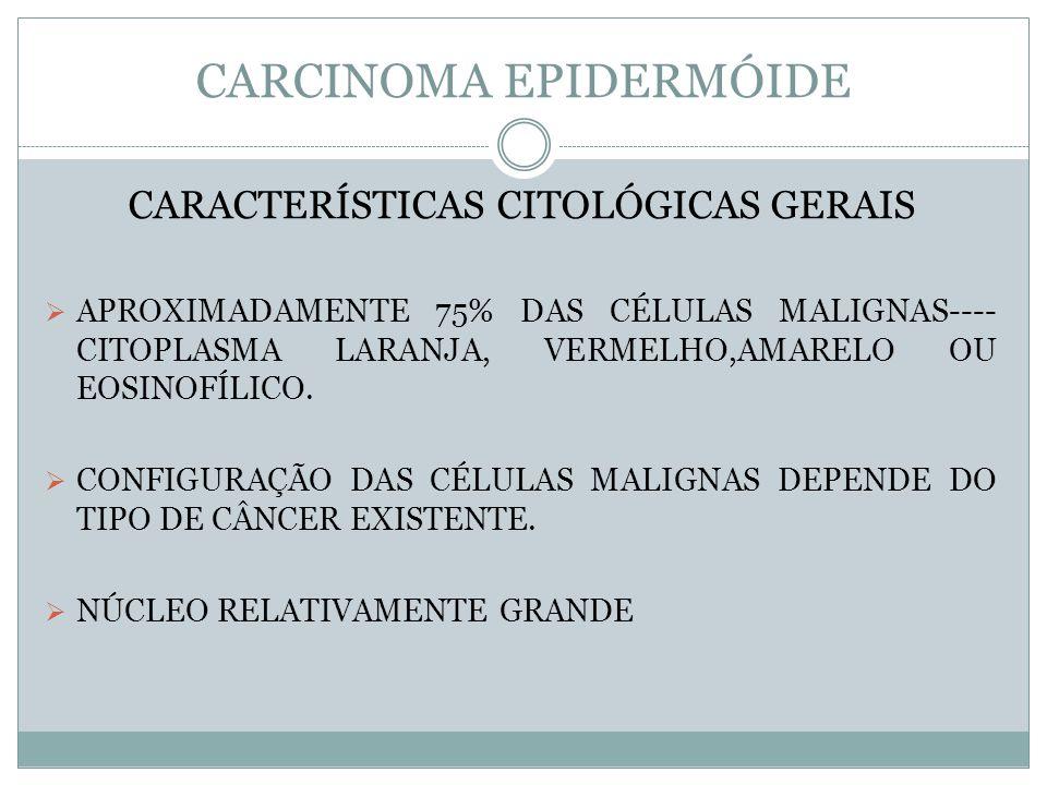 CARCINOMA EPIDERMÓIDE CARACTERÍSTICAS CITOLÓGICAS GERAIS APROXIMADAMENTE 75% DAS CÉLULAS MALIGNAS---- CITOPLASMA LARANJA, VERMELHO,AMARELO OU EOSINOFÍ