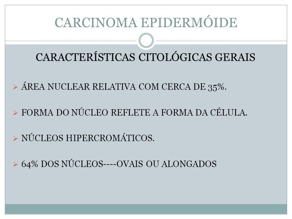 CARCINOMA EPIDERMÓIDE CARACTERÍSTICAS CITOLÓGICAS GERAIS ÁREA NUCLEAR RELATIVA COM CERCA DE 35%. FORMA DO NÚCLEO REFLETE A FORMA DA CÉLULA. NÚCLEOS HI