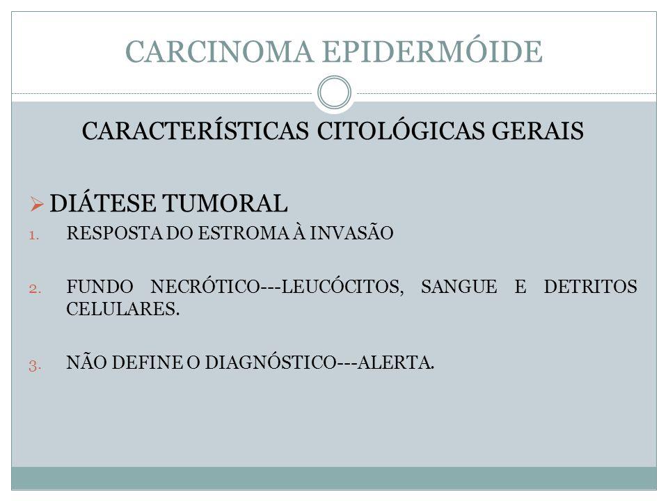 CARCINOMA EPIDERMÓIDE CARACTERÍSTICAS CITOLÓGICAS GERAIS DIÁTESE TUMORAL 1. RESPOSTA DO ESTROMA À INVASÃO 2. FUNDO NECRÓTICO---LEUCÓCITOS, SANGUE E DE
