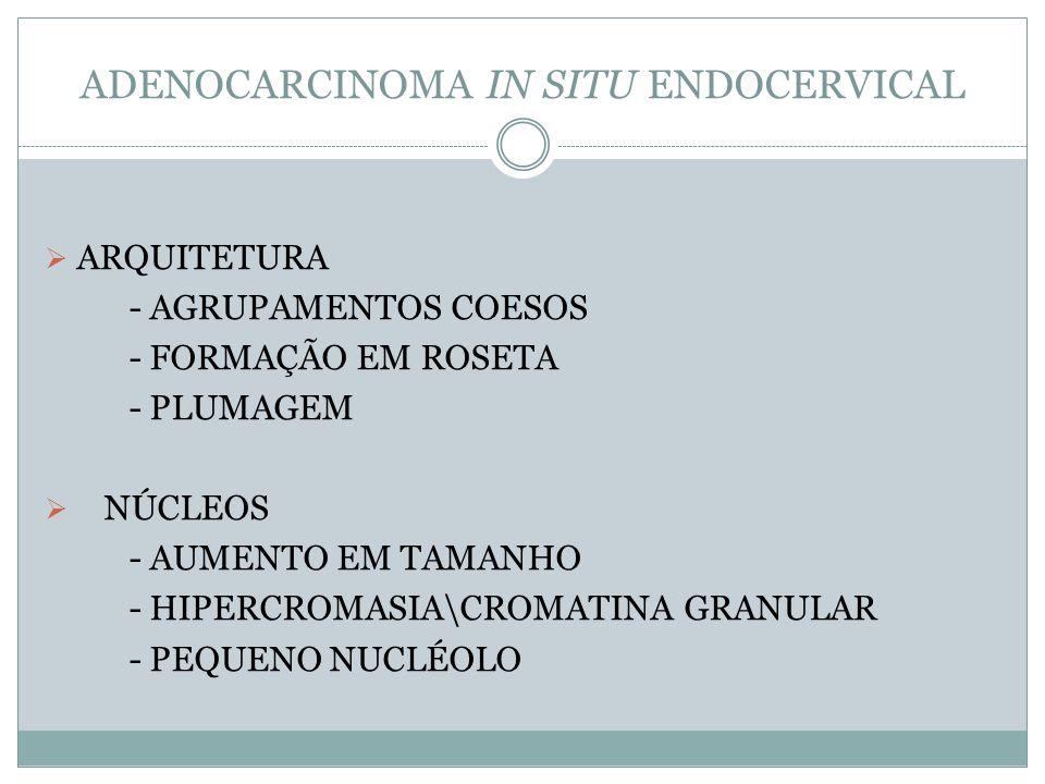 ADENOCARCINOMA IN SITU ENDOCERVICAL ARQUITETURA - AGRUPAMENTOS COESOS - FORMAÇÃO EM ROSETA - PLUMAGEM NÚCLEOS - AUMENTO EM TAMANHO - HIPERCROMASIA\CRO