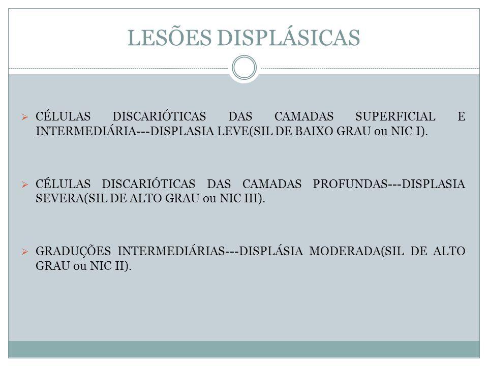 LESÕES DISPLÁSICAS CÉLULAS DISCARIÓTICAS DAS CAMADAS SUPERFICIAL E INTERMEDIÁRIA---DISPLASIA LEVE(SIL DE BAIXO GRAU ou NIC I). CÉLULAS DISCARIÓTICAS D
