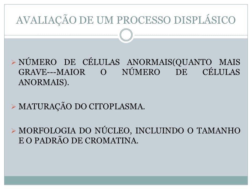 AVALIAÇÃO DE UM PROCESSO DISPLÁSICO NÚMERO DE CÉLULAS ANORMAIS(QUANTO MAIS GRAVE---MAIOR O NÚMERO DE CÉLULAS ANORMAIS). MATURAÇÃO DO CITOPLASMA. MORFO