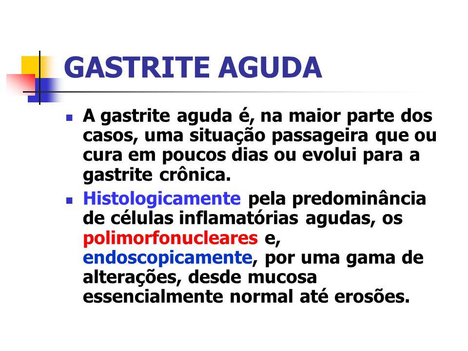 GASTRITE AGUDA A gastrite aguda é, na maior parte dos casos, uma situação passageira que ou cura em poucos dias ou evolui para a gastrite crônica. His