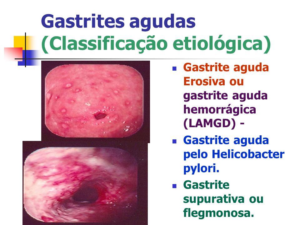 Gastrites agudas (Classificação etiológica) Gastrite aguda Erosiva ou gastrite aguda hemorrágica (LAMGD) - Gastrite aguda pelo Helicobacter pylori. Ga
