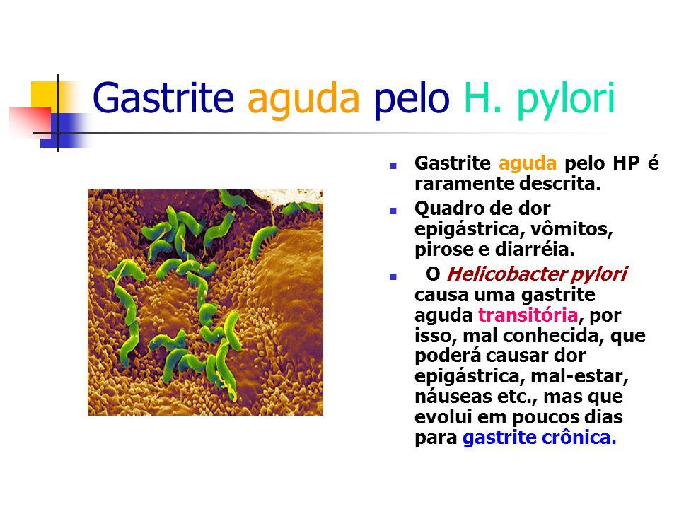 Gastrite aguda pelo H. pylori Gastrite aguda pelo HP é raramente descrita. Quadro de dor epigástrica, vômitos, pirose e diarréia. O Helicobacter pylor