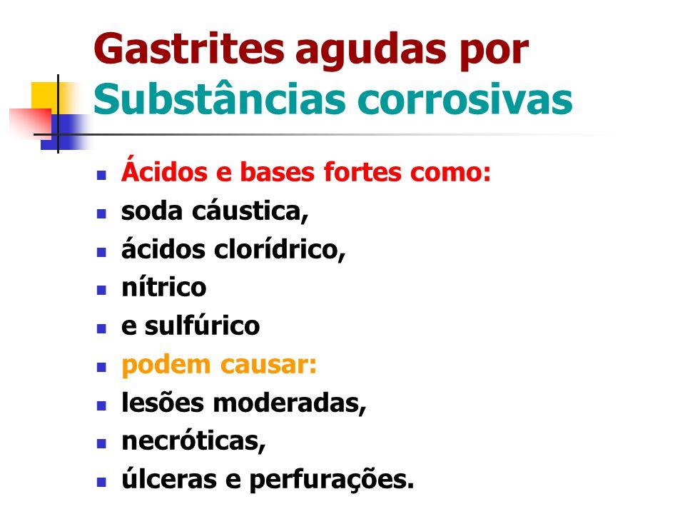 Gastrites agudas por Substâncias corrosivas Ácidos e bases fortes como: soda cáustica, ácidos clorídrico, nítrico e sulfúrico podem causar: lesões mod