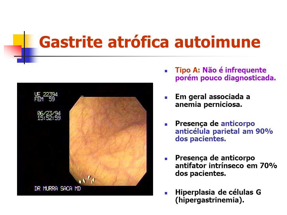 Gastrite atrófica autoimune Tipo A: Não é infrequente porém pouco diagnosticada. Em geral associada a anemia perniciosa. Presença de anticorpo anticél