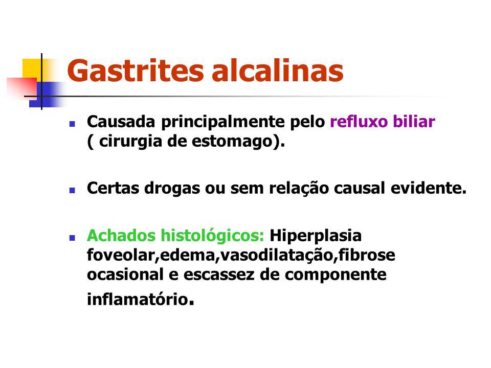 Gastrites alcalinas Causada principalmente pelo refluxo biliar ( cirurgia de estomago). Certas drogas ou sem relação causal evidente. Achados histológ