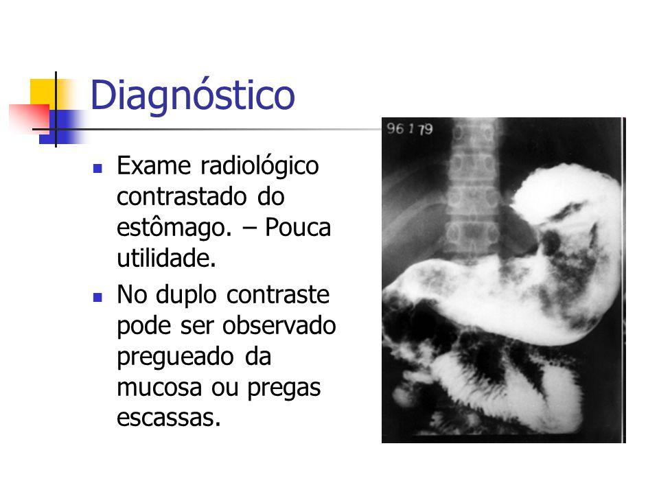 Diagnóstico Exame radiológico contrastado do estômago. – Pouca utilidade. No duplo contraste pode ser observado pregueado da mucosa ou pregas escassas
